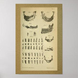 1850 Vintage Anatomie-Druck-Kiefer-Zähne Poster