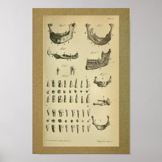 1850 Vintage Anatomie-Druck-Kiefer-Zähne Poster   Zazzle