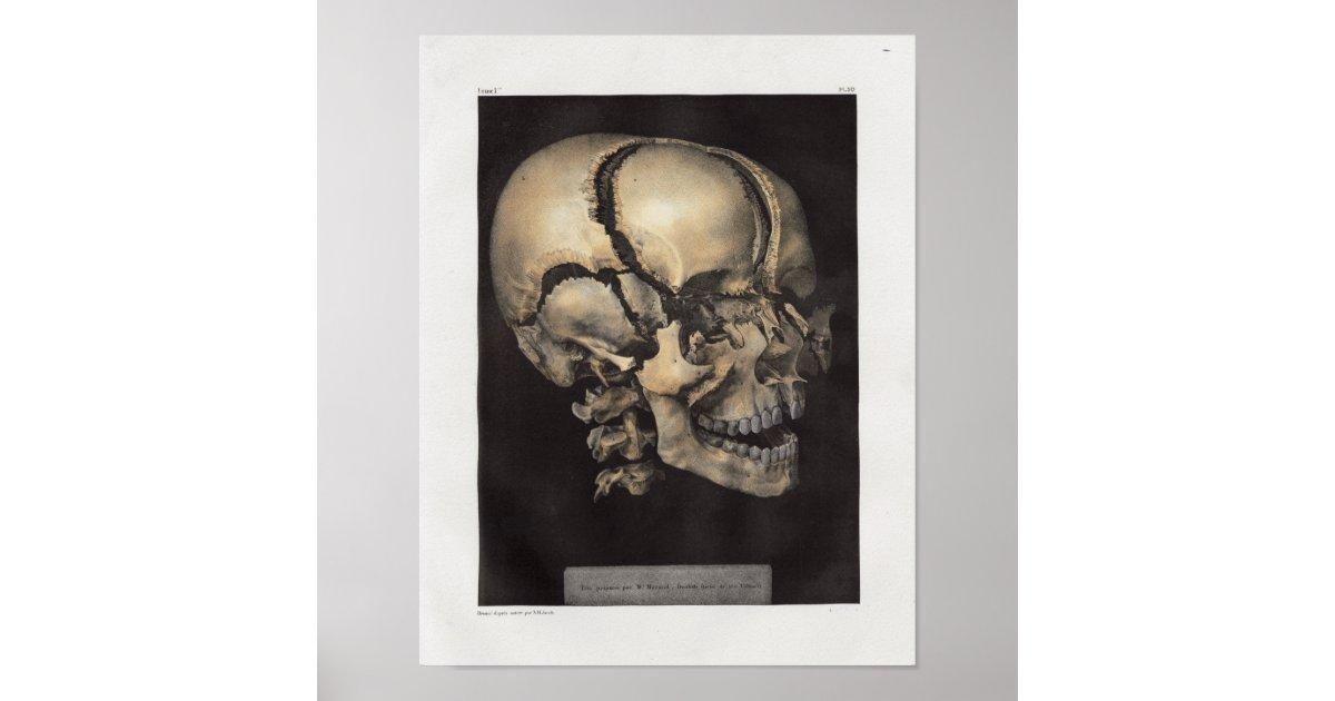 Großzügig Schädel Bilder Anatomie Fotos - Anatomie Ideen - finotti.info
