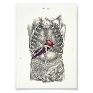 1895 Menschen-Anatomie-Druck-Abdomen Kunstfoto