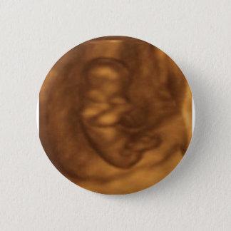 Baby 3d 11 Wochen Runder Button 5,7 Cm