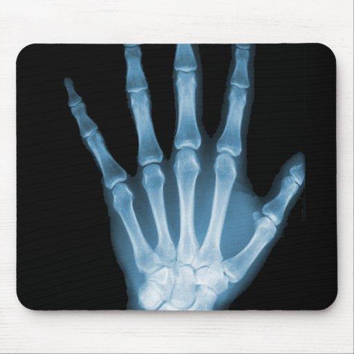 Blaue Röntgenstrahl-Skelett-Hand Mousepad