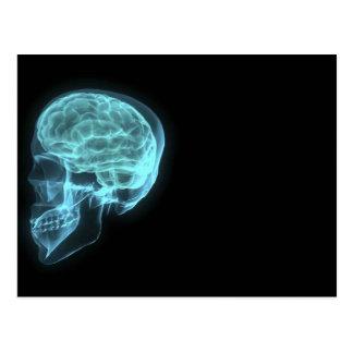Blauer Neonseitenansicht-Röntgenstrahl-Schädel auf Postkarte