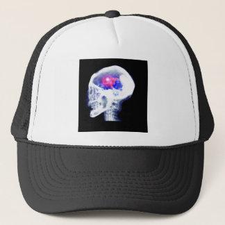 Cyborg-Gehirn Truckerkappe