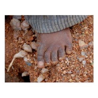Der Fuß des Kindes in Afrika Postkarte