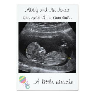 Eine kleine Wunder ~ Schwangerschafts-Mitteilung 12,7 X 17,8 Cm Einladungskarte