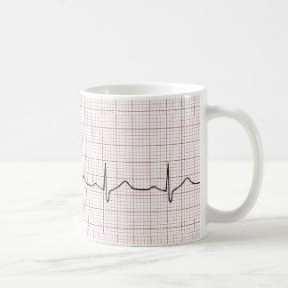 EKG Herzschlag auf Zeichenpapier mit Kaffeetasse