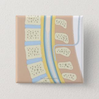 Epidurale Anästhesie Quadratischer Button 5,1 Cm