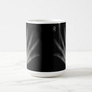 Extrastellen-Röntgenstrahl-rechte u. links Hände Kaffeetasse