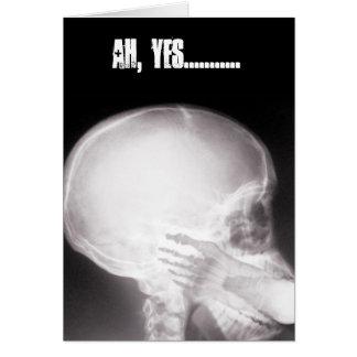 Fuß im Mund-Röntgenstrahl Karte