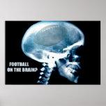 Fußball-Kopf (Röntgenstrahl) Posterdruck