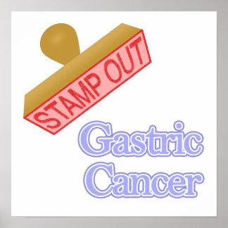 Gastrischer Krebs Poster