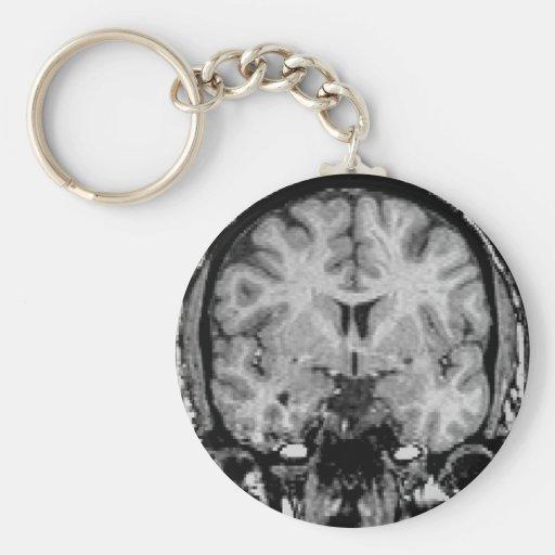 Gehirn MRI, Kranzscheibe Schlüsselanhänger