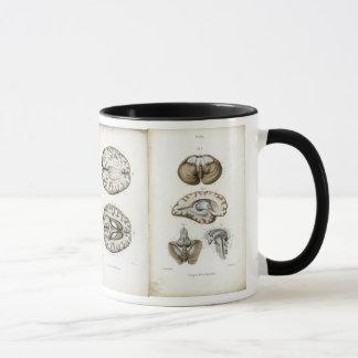 Gehirnanatomie-Druck-Tasse Tasse