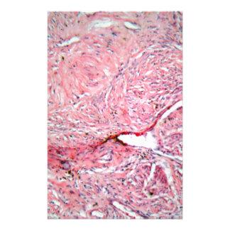 Gewebezellen von einem menschlichen Hals mit Krebs Briefpapier