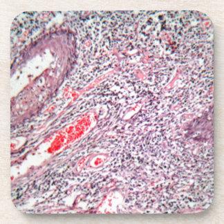 Gewebezellen von einem menschlichen Hals mit Krebs Getränkeuntersetzer