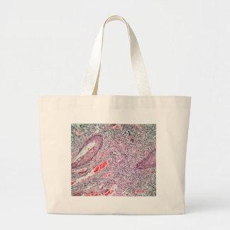 Gewebezellen von einem menschlichen Hals mit Krebs Jumbo Stoffbeutel
