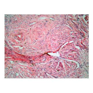 Gewebezellen von einem menschlichen Hals mit Krebs Postkarte