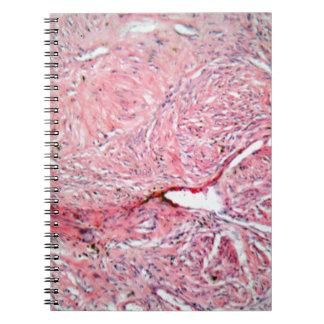 Gewebezellen von einem menschlichen Hals mit Krebs Spiral Notizblock
