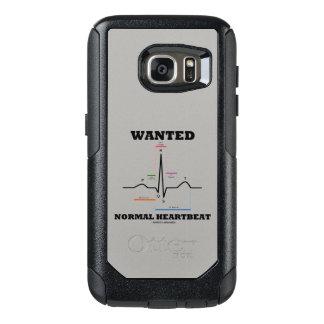 Gewolltes normales Elektrokardiogramm des OtterBox Samsung Galaxy S7 Hülle