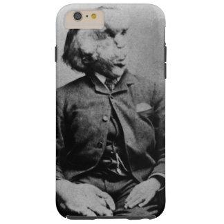 """Joseph """"John"""" Merrick Elephant Man ab 1889 Tough iPhone 6 Plus Hülle"""