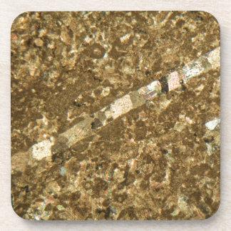 Kalkstein unter dem Mikroskop Untersetzer