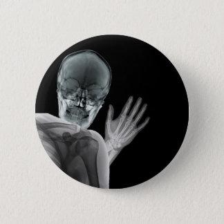 Lustiger Röntgenstrahl Photobomb Runder Button 5,7 Cm