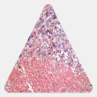 Menschliche Haut mit Hautkrebs unter einem Dreieckiger Aufkleber