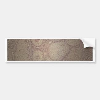 Menschliche Haut mit Plattenepithelkarzinom Autoaufkleber