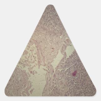 Menschliche Haut mit Plattenepithelkarzinom Dreieckiger Aufkleber