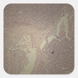 Menschliche Haut mit Plattenepithelkarzinom Quadratischer Aufkleber