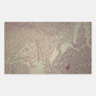 Menschliche Haut mit Plattenepithelkarzinom Rechteckiger Aufkleber