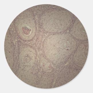 Menschliche Haut mit Plattenepithelkarzinom Runder Aufkleber