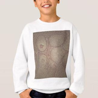 Menschliche Haut mit Plattenepithelkarzinom Sweatshirt