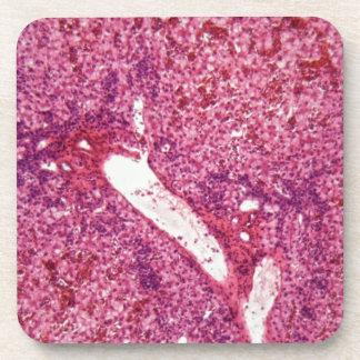 Menschliche Leberzellen mit Krebs unter dem Getränkeuntersetzer