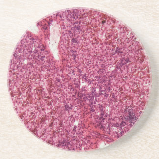 Menschliche Leberzellen mit Krebs unter dem Sandstein Untersetzer