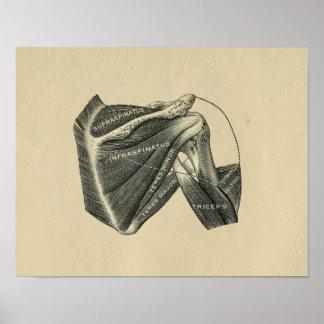 Menschliche Schulter-Anatomie 1902 Vintager Druck Poster