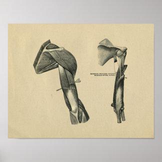 Menschliche Schulter-Arm-Anatomie 1902 Vintager Poster