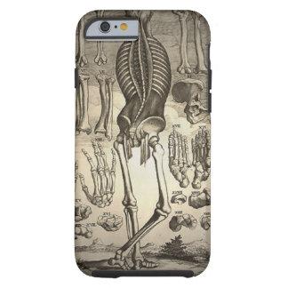 Menschliches Skelett Ca 1741 Tough iPhone 6 Hülle