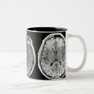 MRI Gehirn-Bild-Tasse Zweifarbige Tasse