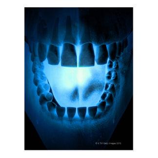 Mund-Bereich Postkarte