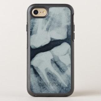 Nahaufnahme eines zahnmedizinischen Röntgenstrahls OtterBox Symmetry iPhone 8/7 Hülle