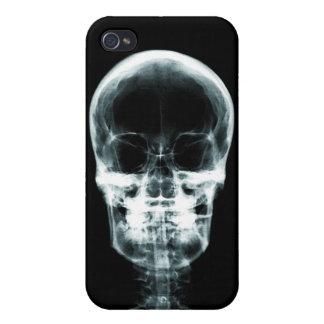 RÖNTGENBLICK-SKELETON SCHÄDEL - VORLAGE iPhone 4 COVER