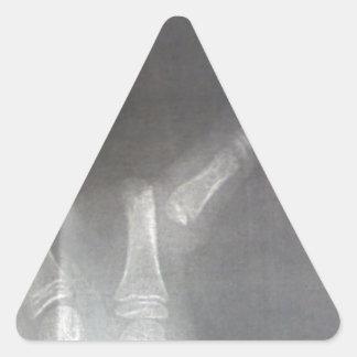 Röntgenstrahl Dreieckiger Aufkleber