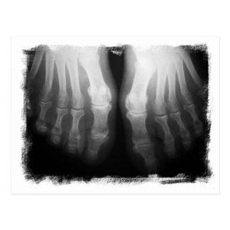 Röntgenstrahl-Fuß-menschliches Skeleton Postkarte