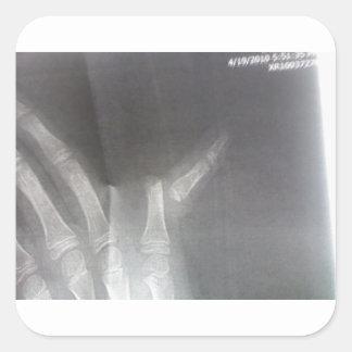 Röntgenstrahl Quadratischer Aufkleber