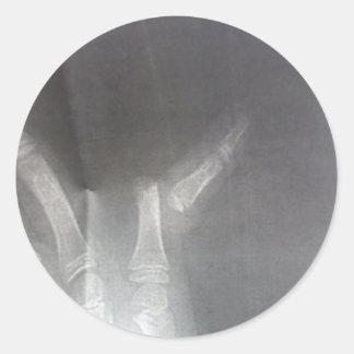 Röntgenstrahl Runder Aufkleber