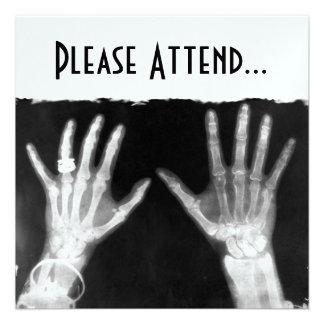 Röntgenstrahl-Skeleton Hände u Schmuck - B W Einladungskarten