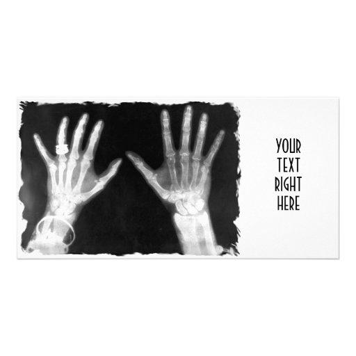 Röntgenstrahl-Skeleton Hände u. Schmuck - B&W Photokarte