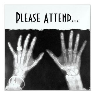 Röntgenstrahl-Skeleton Hände u. Schmuck - B&W Quadratische 13,3 Cm Einladungskarte